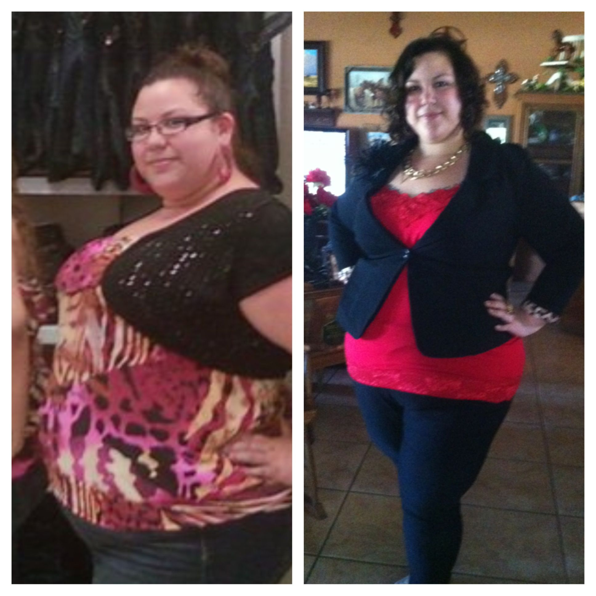 3 Months Out From Rny Gastric Bypass Health Weight Loss Surgery