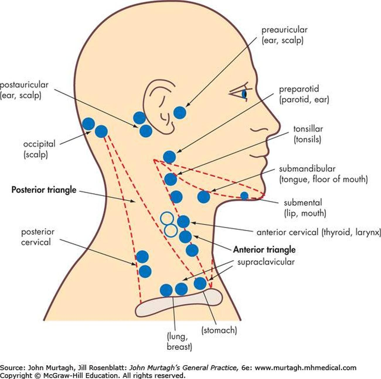 pictures of anterior cervical lymph nodes [ 1300 x 1292 Pixel ]