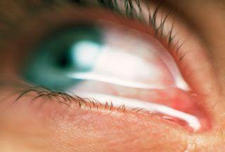 هل تعاني من حساسية العين مقالات طبية كل يوم معلومة طبية Watery Eyes Fibromyalgia Arthritis