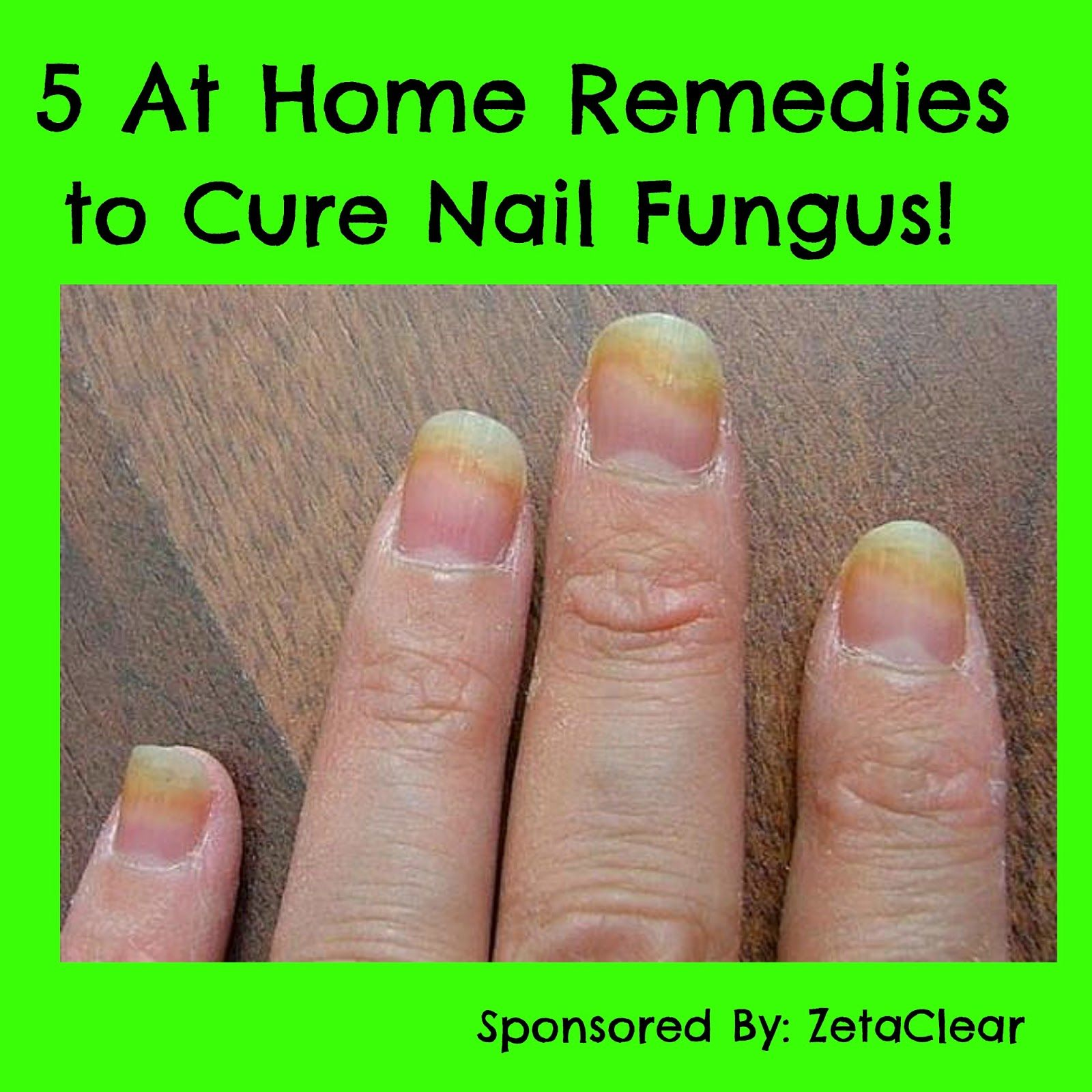 5 At Home Reme s to Cure Nail Fungus