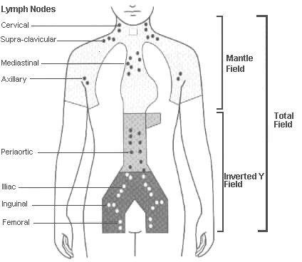 Resultado de imagen de ganglios linfaticos paraaorticos | MIR ...