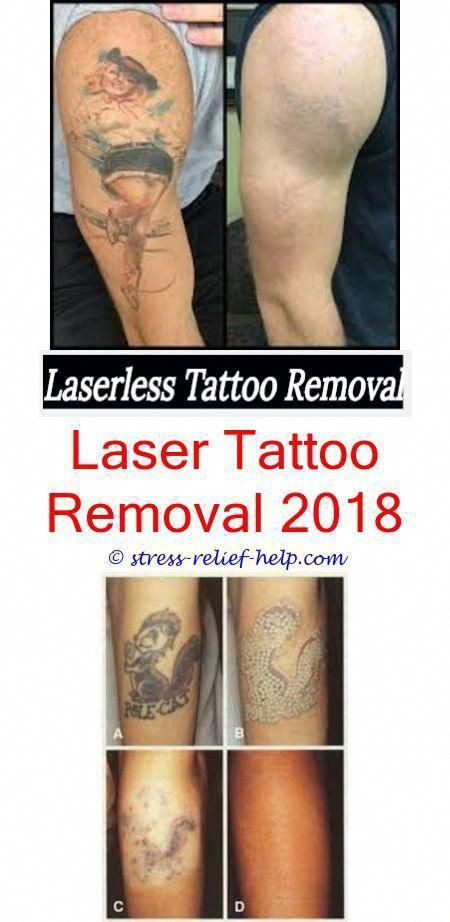 Can a dermatologist remove tattoos.How much does it cost to get ...