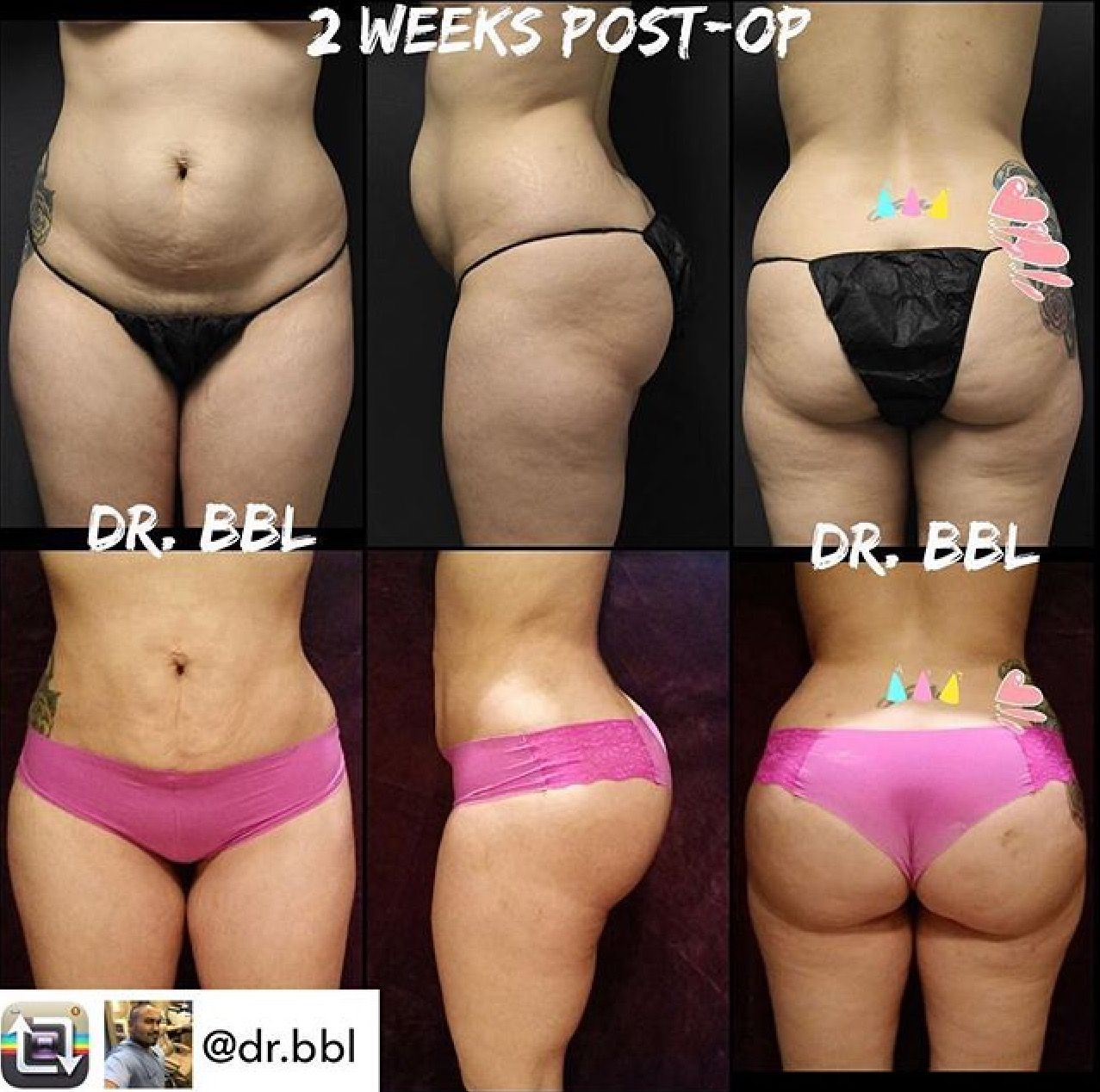 💁Repost from @dr bbl 2 week Lipo360 with BBL surgery photo