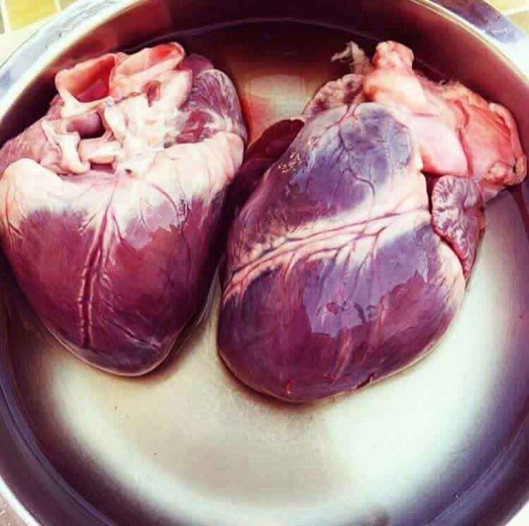 Pin von Ayat Mohammed auf Medicine | Pinterest | anatomisches Herz ...