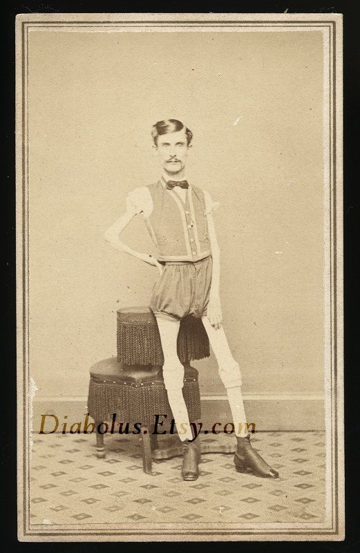 Original 1860s Carte De Visite Of An Extremely Thin Man On The Back Handwritten In