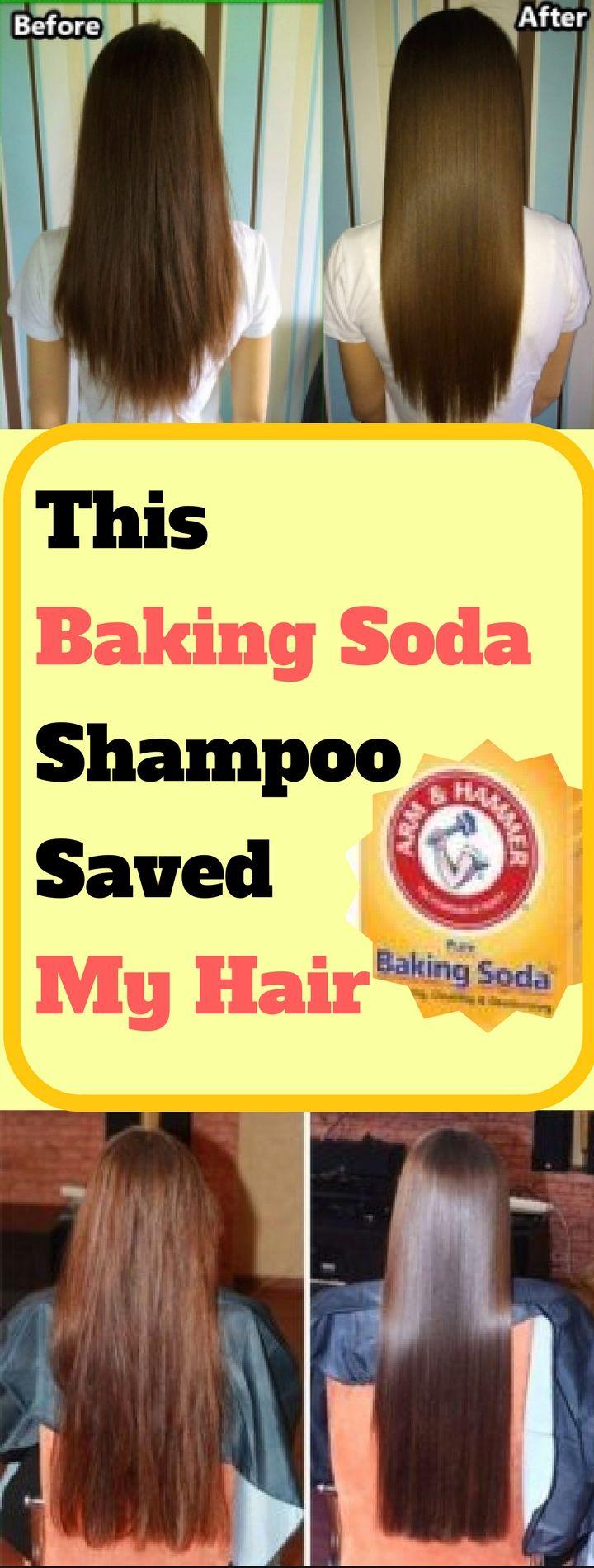 This Baking Soda Shampoo Saved My Hair Baking Soda Shampoo Recipe Baking Soda Shampoo Grow Hair