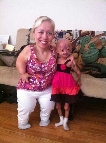dalia rose  Adalia Rose | Aww | Pinterest | Beautiful children, Beautiful and ...