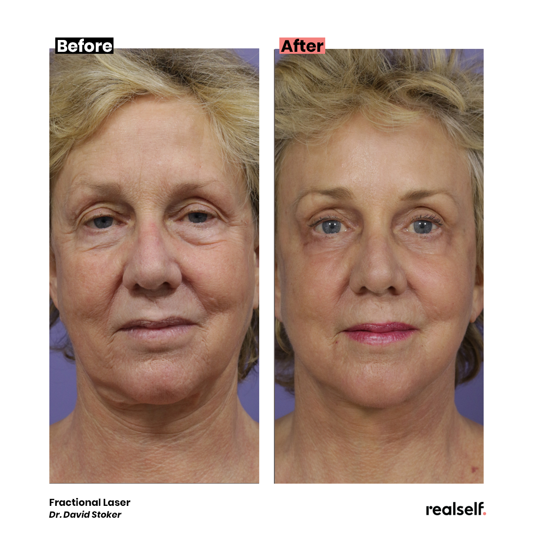 Laser Resurfacing What You Should Know Laser