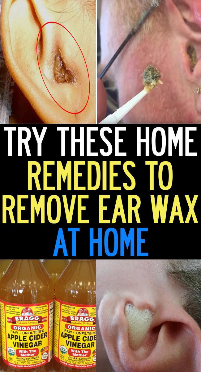 Natural Home Remedies To Remove Ear Wax At Home Quick Look Natural Ear Infection Remedy Ear Infection Remedy Clogged Ear Remedy