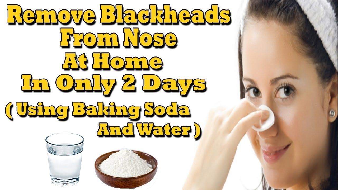 Remove Blackheads From Nose At Home In Only  Days Using Baking