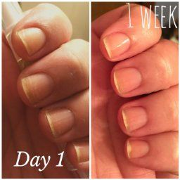 My nails are usually ridge filled, dry, and break and tear easily ...