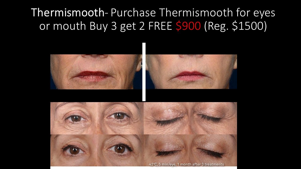 Gentle Way To Say God Bye To Wrinkles With Out Downtime Take Advantage Of Price Till End Of This Month Skin Treatments Skin Rejuvenation Medical Aesthetic