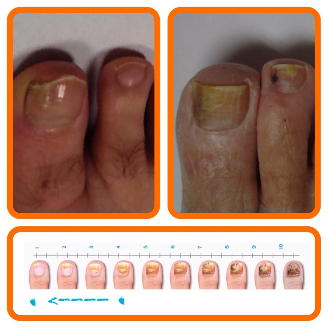 NovoNail works! If you want fungus free nails visit us online and ...