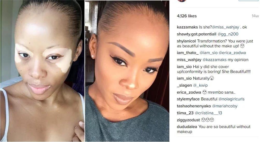 girls-dating-sites-vitiligo