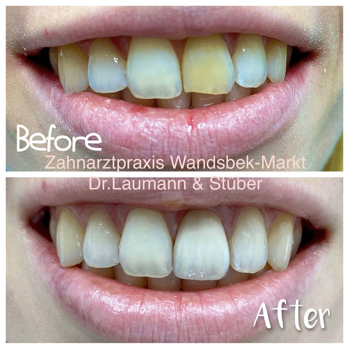 20 Before & After Ideen   zahnarztpraxis, zahnarzt, zähne