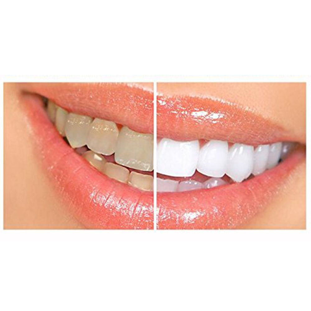 Colgate teeth whitening teeth whitening products pinterest teeth - 28pc Oral Care Hygiene Teeth Whiten Tools Teeth Whitening Strips Gel Dental Bleaching Tooth Whitening Bleach