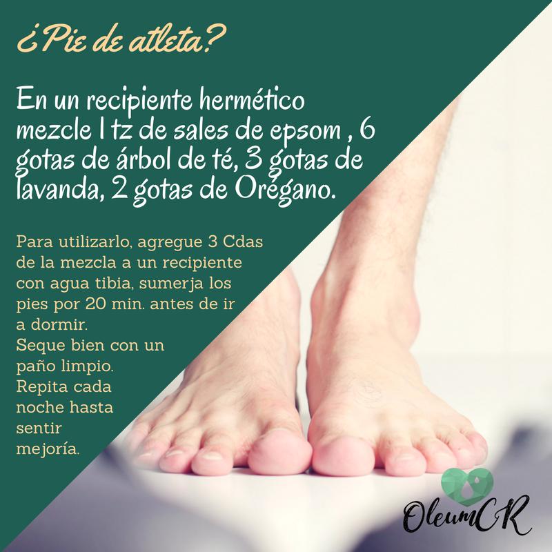 El pie de atleta es una infección por hongos, que ataca normalmente ...
