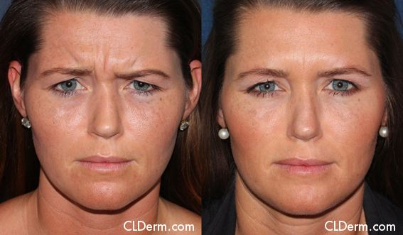 Before After Botox And Dysport Photos San Diego Cldermatology Botox Before And After Botox Cosmetics Laser