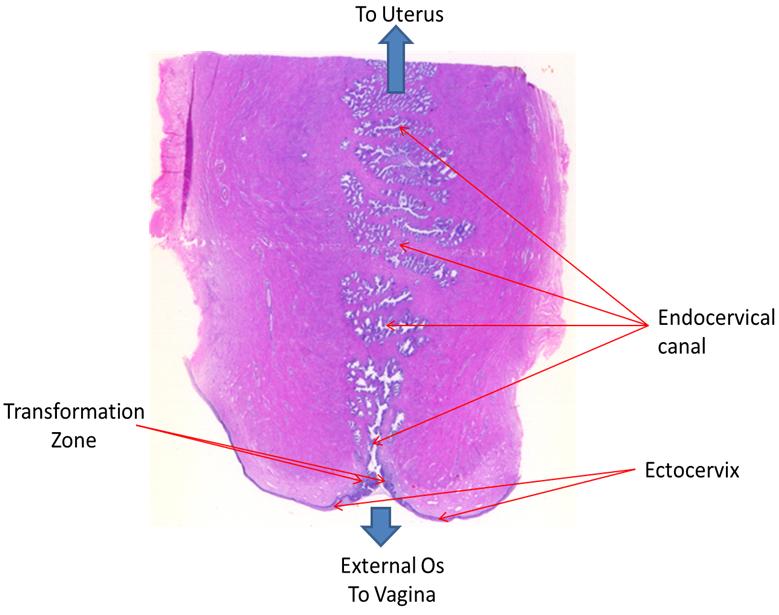 cervix övergångsepitel histologi - Google Search | Anatomical ...