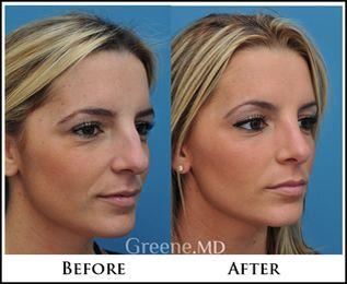 Cosmetic facial fort lauderdale surgery