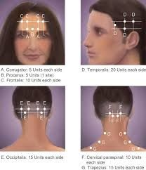 Image result for botox injection sites diagram | botox