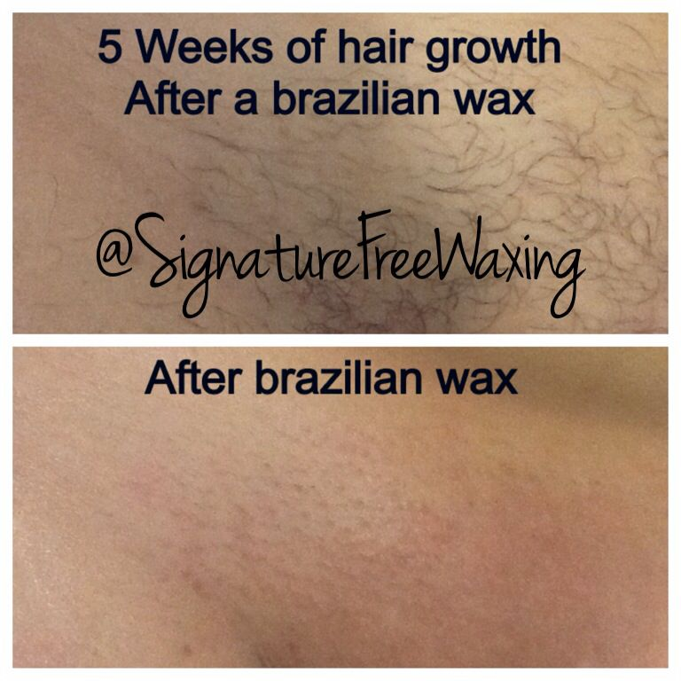 wax hair growth Bikini
