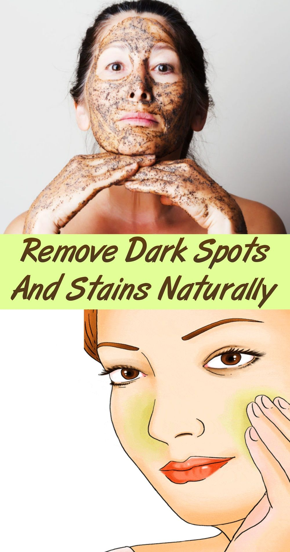 Dark spots on face, moles, dark patches, freckles, and white