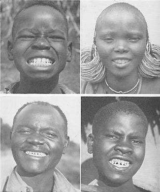 diets teeth native foods brothers isle of harris