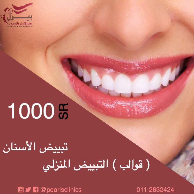 لفترة محدودة تبييض الاسنان قوالب التبييض المنزلي 1000 ريال مجمع عيادات بيرل اسنان جلدية ليزر الرياض الازدهار 0112632424