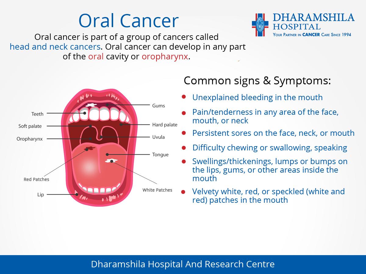 Cancerul bucal (oral). Ce este, care sunt simptomele si CUM se trateaza