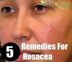 Top 5 Home Remedies For Rosacea #homeremediesforringworm Top 5 Home Remedies For #Rosacea #homeremediesforringworm Top 5 Home Remedies For Rosacea #homeremediesforringworm Top 5 Home Remedies For #Rosacea #homeremediesforringworm Top 5 Home Remedies For Rosacea #homeremediesforringworm Top 5 Home Remedies For #Rosacea #homeremediesforringworm Top 5 Home Remedies For Rosacea #homeremediesforringworm Top 5 Home Remedies For #Rosacea #homeremediesforringworm
