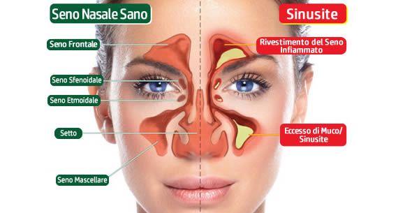 sbarazzarsi sinusite congestione nasale