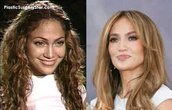 Jennifer Lopez Botox Before And After Botox Botox Injections Botox Before And After