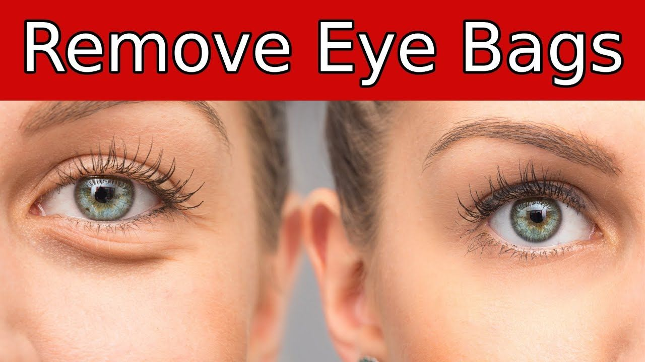 66bd8cbc7dc4321b43c60aa14950361d - How To Get Rid Of Bags Under Eyes Naturally Fast