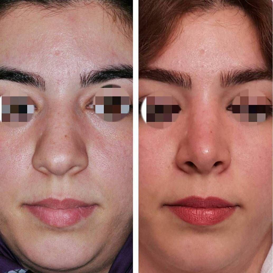 Bulbous nose rhinoplasty before and after images