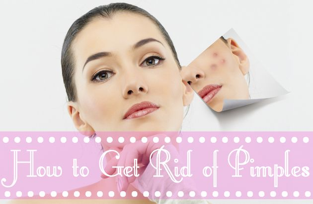Tricks to get rid of pimples overnight