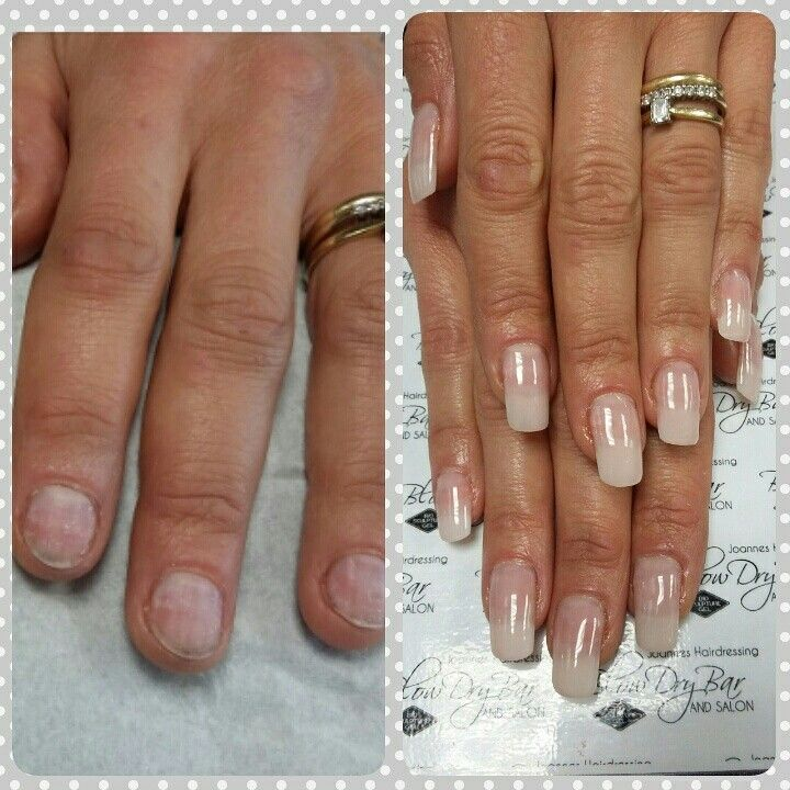 Before After Biosculpture Tips Added For Length On Bitten Nails And A Natural Overlay