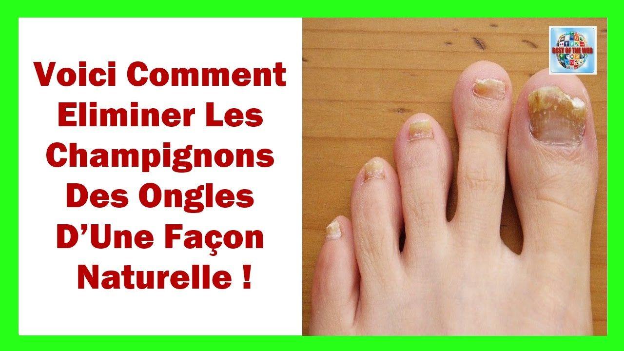Voici Comment Éliminer Les Champignons Des Ongles d'Une Façon Naturelle | Champignon des ongles ...