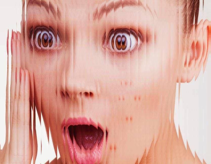 Tips Bagaimana Cara Menghilangkan Jerawat Merah Di Pipi Jerawat Tips Kesehatan Gigi