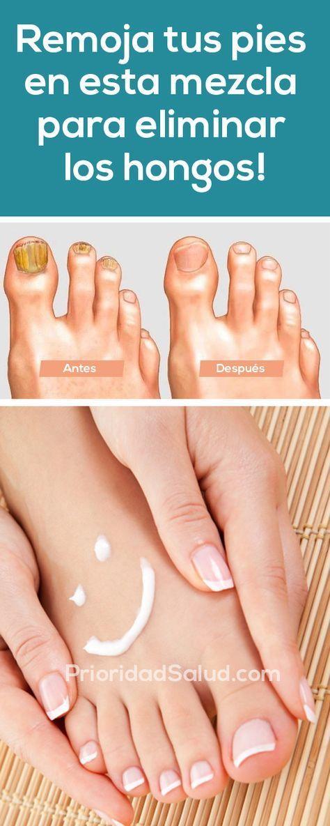 Productos para hongos en los pies
