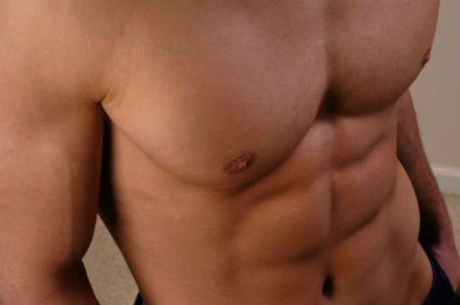 6 Pack Abs Png 670 445 Abs Workout Abs Excercise Washboard Abs