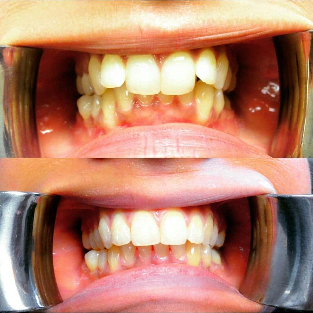 Neighborly Dental Bridge Front Teeth #dentistadobem