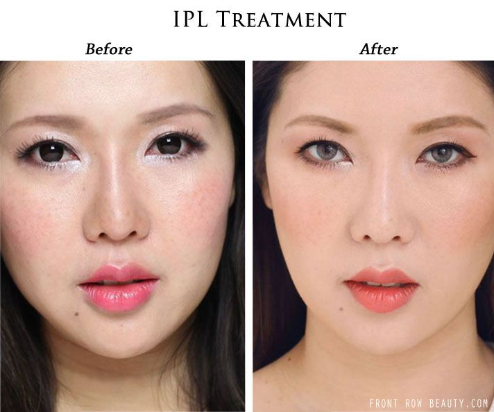 Ipl and facial products