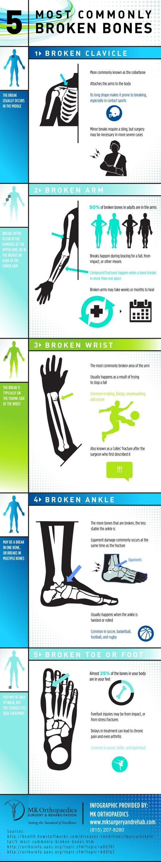 5 Most Commonly Broken Bones Broken bone, Medical