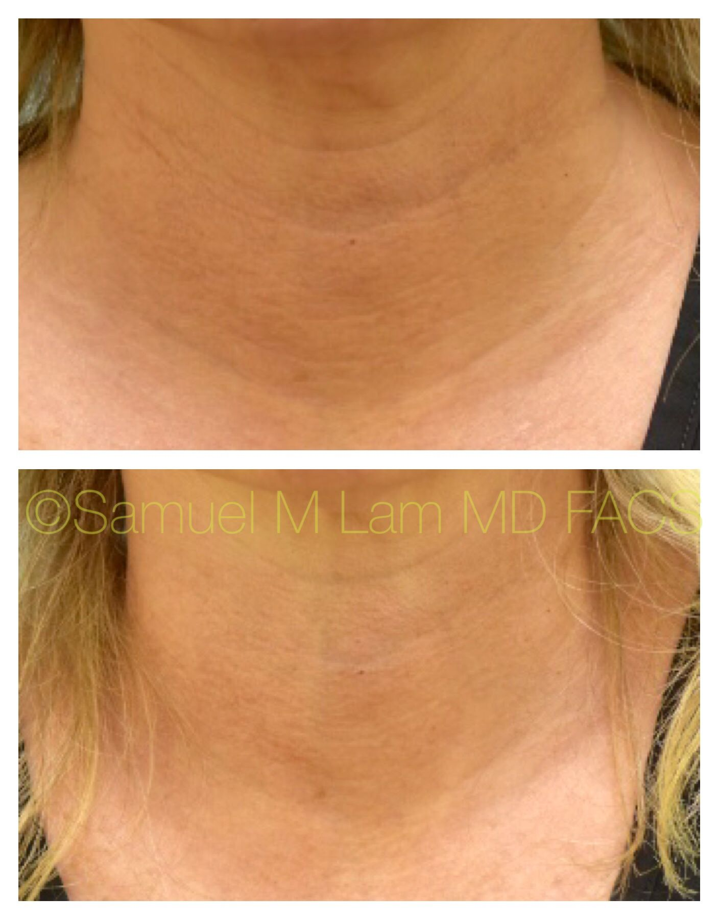 This patient had Botox into the neck using a technique
