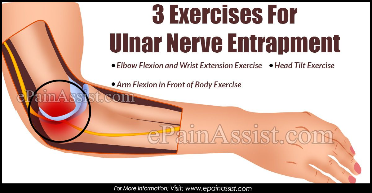 nerve entrapment treatment