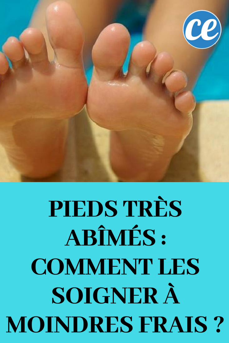pieds tres abimes