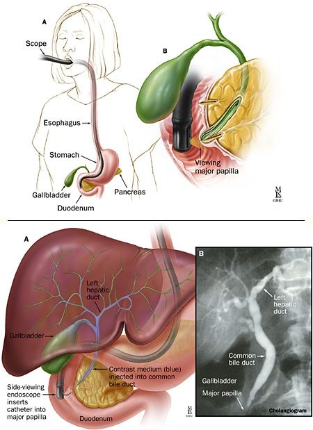 A B Position Of The Endoscope In The Duodenum During Ercp