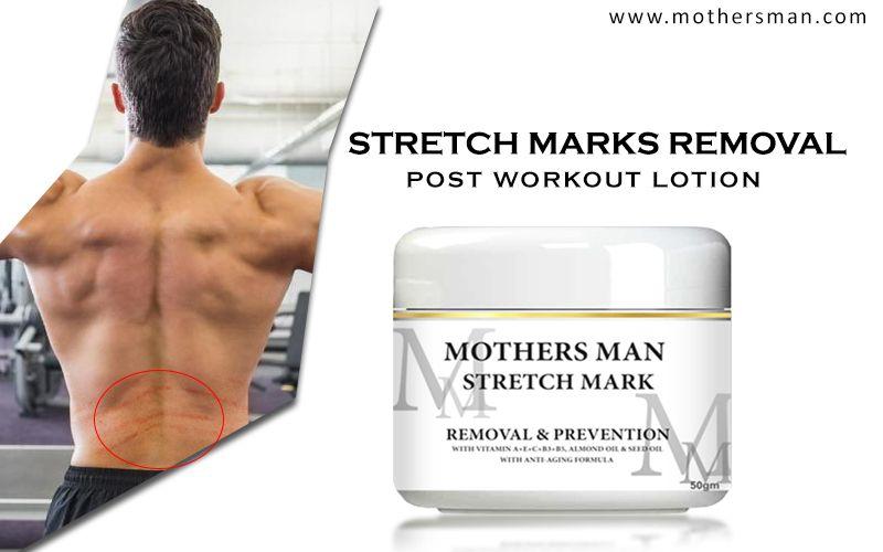 Best Stretch Marks Removal Cream Online Mothers Man Stretchmarksremovalcream Controlstretchmarkscream Str