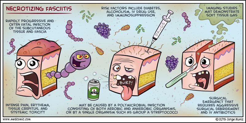 Necrotizing fasciitis | Diseases | Pinterest | Medical mnemonics ...